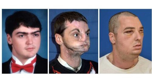 World's Most Extreme Face-Transplant a Success