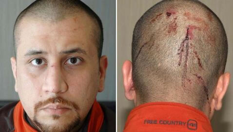 Was George Zimmerman Demonized Due to NBC's Editing of His 911 Call?