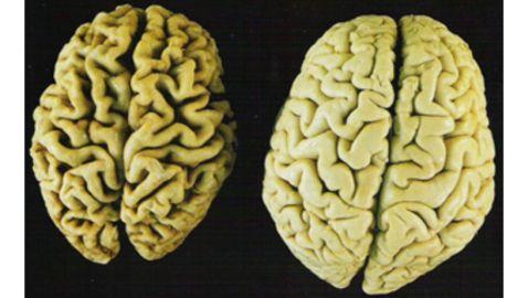 Roche Doubles Alzheimer's Test Group
