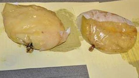 Woman Arrested in Spain for Smuggling Cocaine in Her Breast Implants