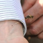 honeybee-sting