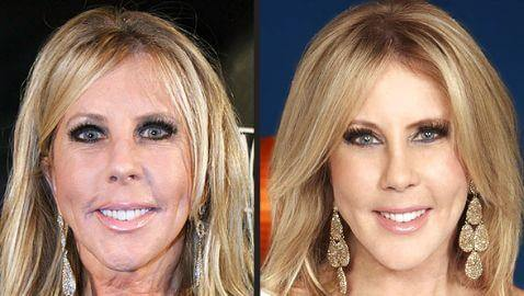 Vicki Gunvalson Sports New Look