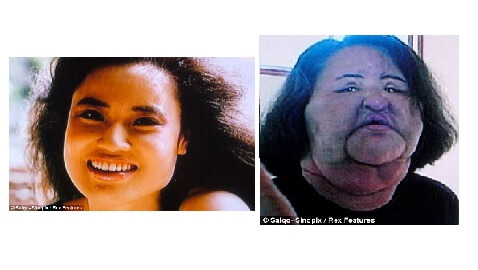 Model Injects Cooking Oil in her Face to Feed her Plastic Surgery Addiction
