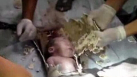 Two-Day-Old Baby Pulled From Sewage Pipe in China