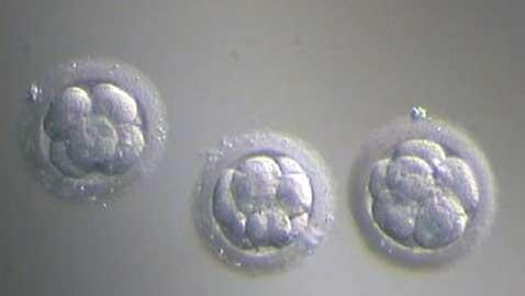 Belgian Doctors Claim Super Cheap IVF Techniques Can Begin Fertility Revolution