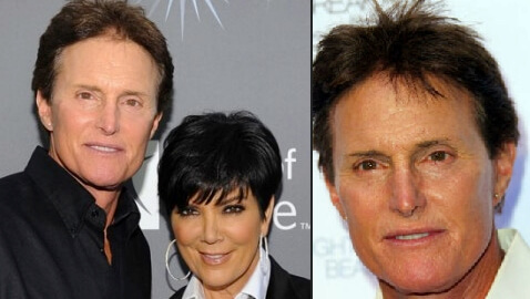 Bruce Jenner's Nose Issue is Skin Cancer