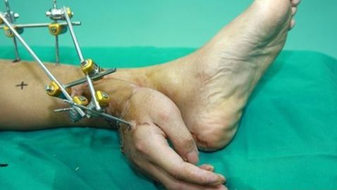 Chinese Man Has Severed Hand Attached to Leg