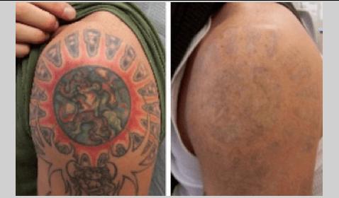 Woman Cuts off Tattoo and Sends Skin to Her Ex-Boyfriend