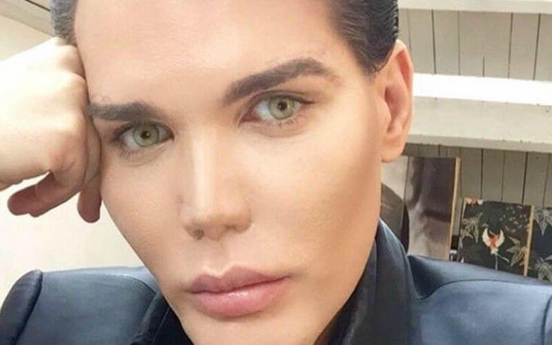 """Human Ken Doll"" Has Had More Than 50 Cosmetic Surgeries"