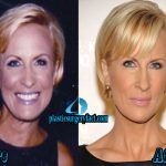 Mika Brzezinski Plastic Surgery: BEFORE AND AFTER PICTURES