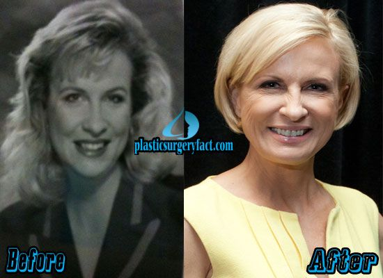 Has Mika Brzezinski had filler injections?